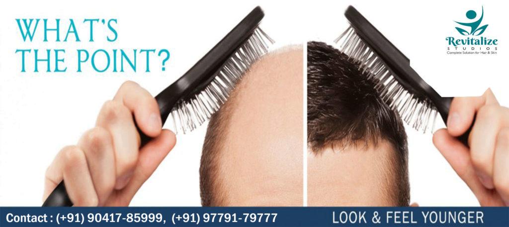 HAIR LOSS & TRANSPLANT TREATMENTS