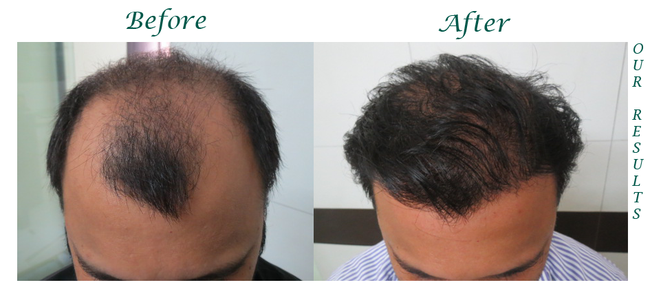 Hair Transplant Center in Jalandhar, Hair Transplant Centre in Jalandhar, Hair Transplant in Jalandhar, Jalandhar, Hair Transplant Center