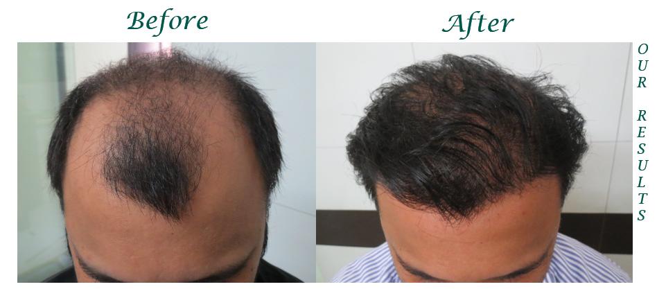 Hair Transplant Center in Jalandhar, Hair Transplant Centre in Jalandhar, Hair Transplant in Jalandhar, Jalandhar, Hair Transplant Center