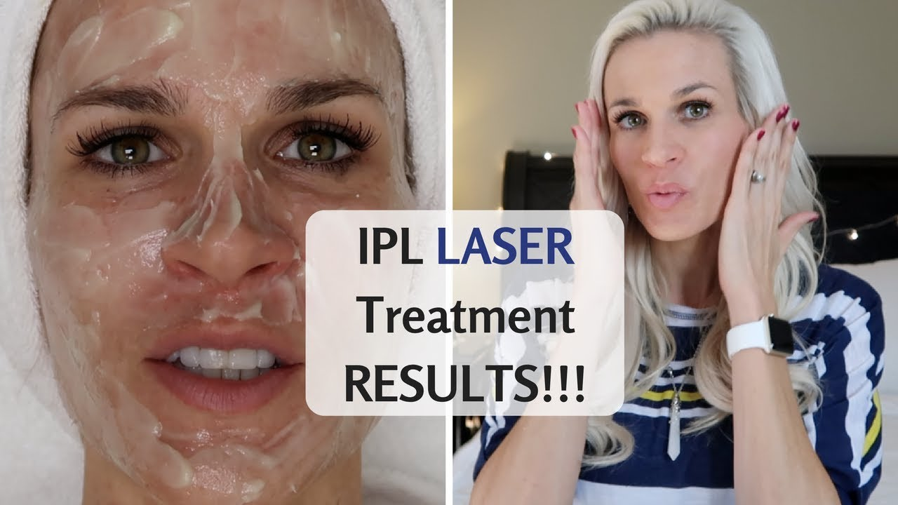 IPL LASER TREATMENTS