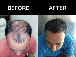 Best Hair Transplant Clinic Jalandhar Punjab