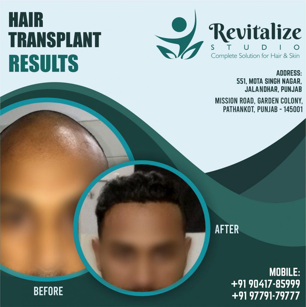 Best Hair Transplant In Ludhiana | Revitalized Studios