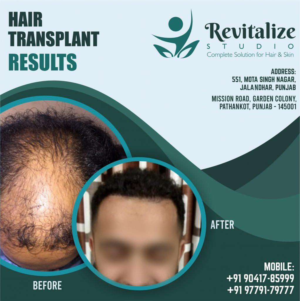 Best Hair Transplant In Jalandhar Punjab | Revitalized Studios In Jalandhar