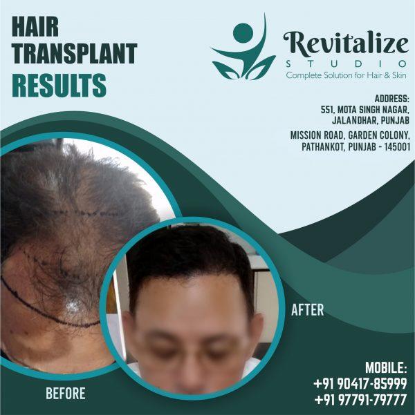 Cost Of Hair Transplant In Ludhiana- Revitalized Studio In Ludhiana