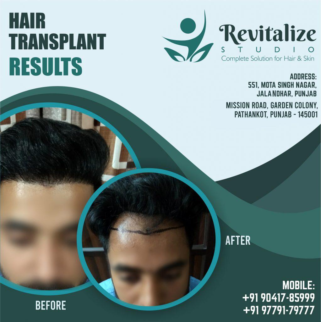 Hair Transplant Clinic In Ludhiana | Revitalized Studios In Ludhiana