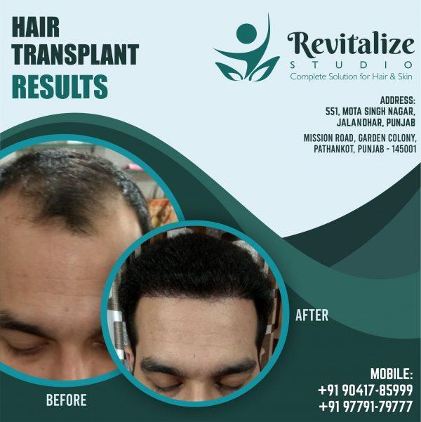 Hair Transplant In Jalandhar Price   Revitalized Studios In Jalandhar, hair transplant in jalandhar, hair transplant, hair transplant in jalandhar cost, hair transplant jalandhar, hairs transplant, best hair transplant in jalandhar, hair transplant in jalandhar cost, hair transplant in jalandhar price