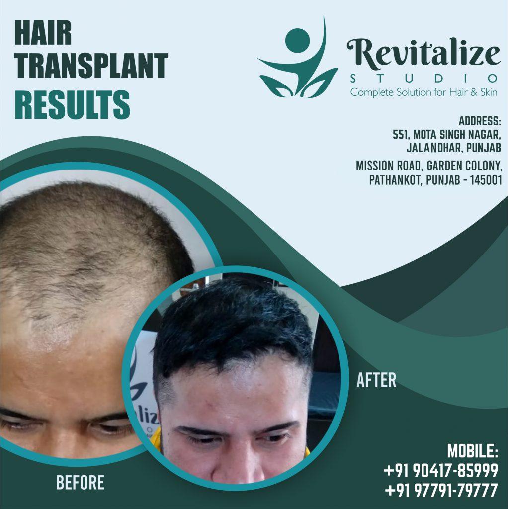 Hair Transplant In Ludhiana - Revitalized Studios Ludhiana