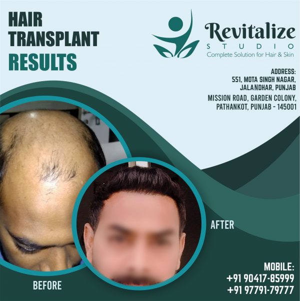Hair Transplant In Ludhiana Cost- Revitalized Studios Punjab