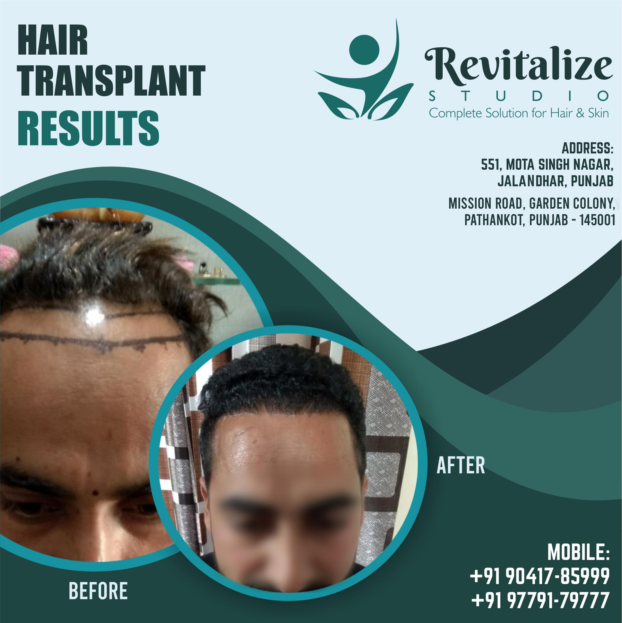 hair transplant in jalandhar, revitalize studios